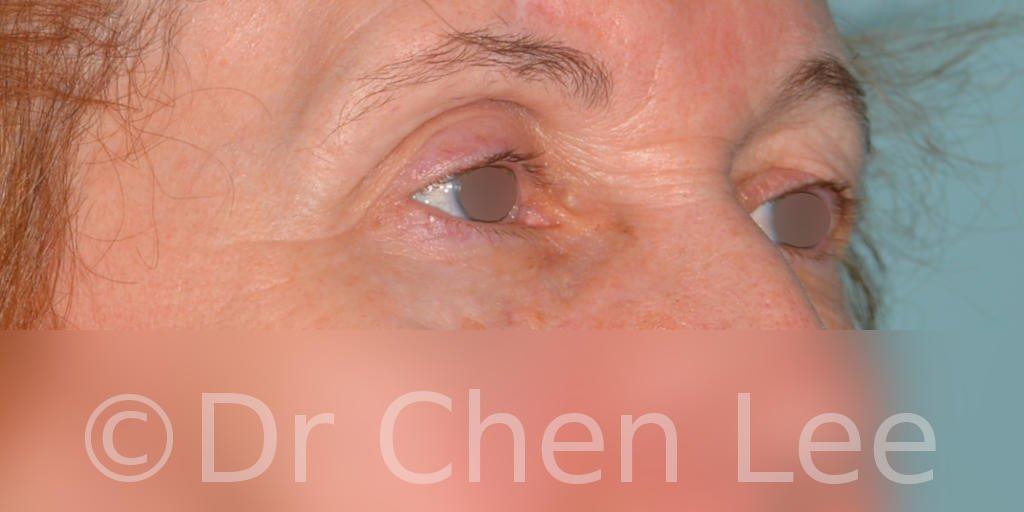 Chirurgie des paupières avant après blépharoplastie photo oblique droite #07