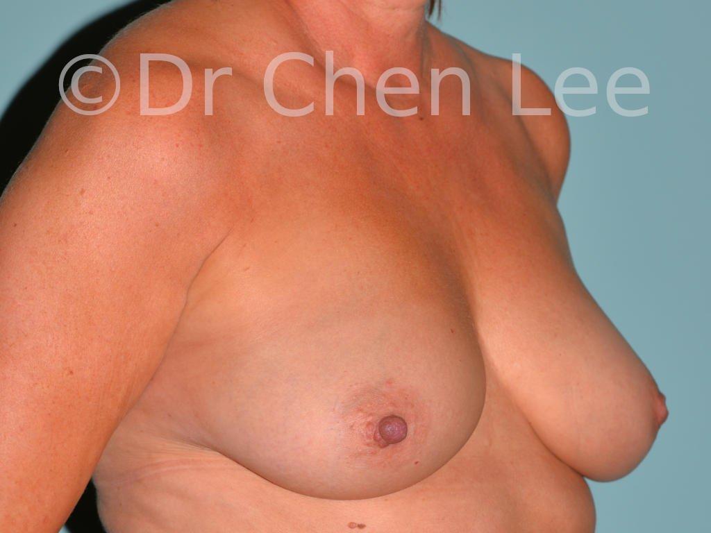 Mamelon inversé avant après chirurgie photo oblique droite #10