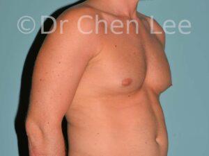 Gynécomastie avant après réduction mammaire homme photo oblique droite #07