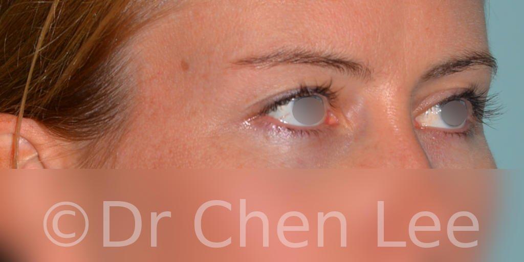 Chirurgie des paupières avant après blépharoplastie photo oblique droite #02