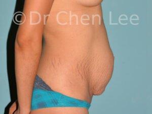 Abdominoplastie avant après redrapage abdomen photo côté droit #01