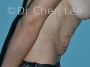 Abdominoplastie avant après redrapage abdomen photo côté droit flex #11