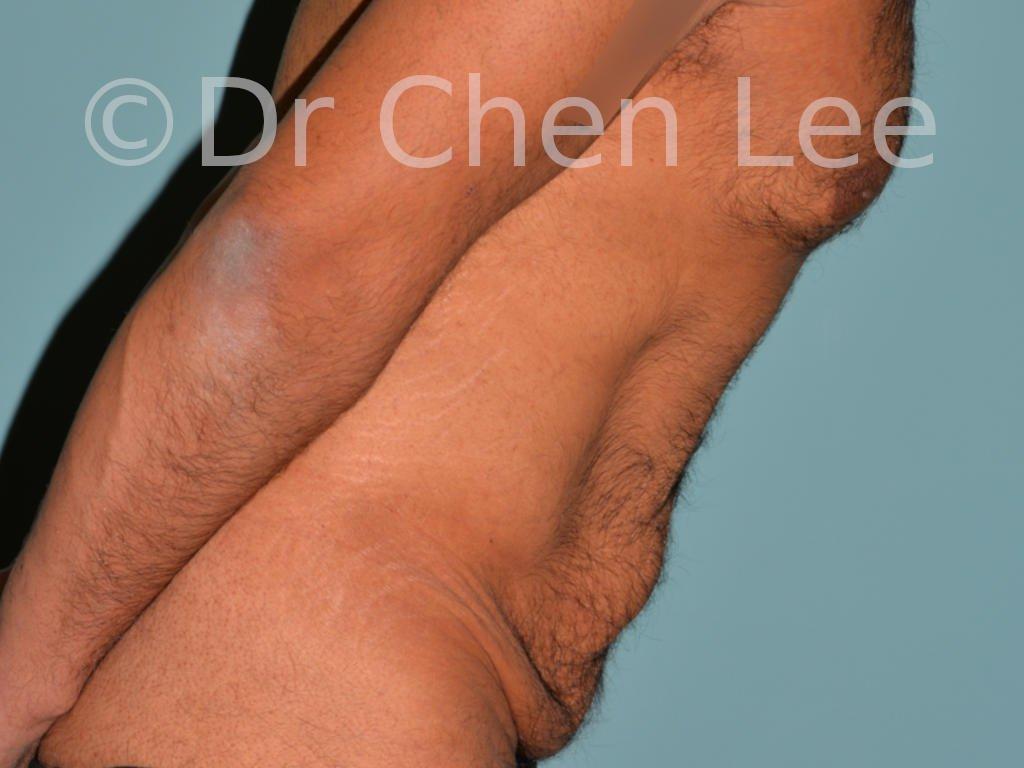 Abdominoplastie avant après redrapage abdomen photo côté droit flex #10