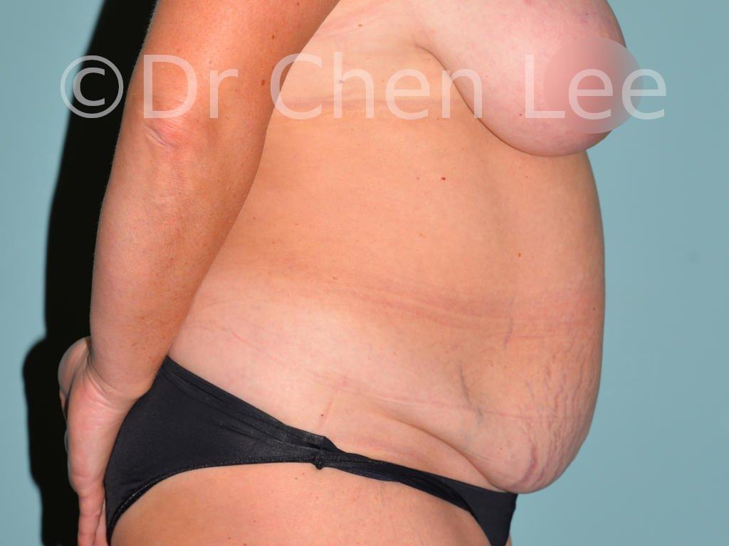 Abdominoplastie avant après redrapage abdomen photo côté droit #08