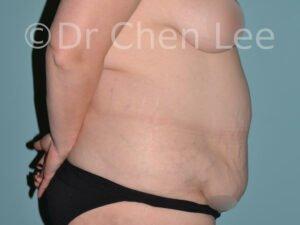 Abdominoplastie avant après redrapage abdomen photo côté droit #09