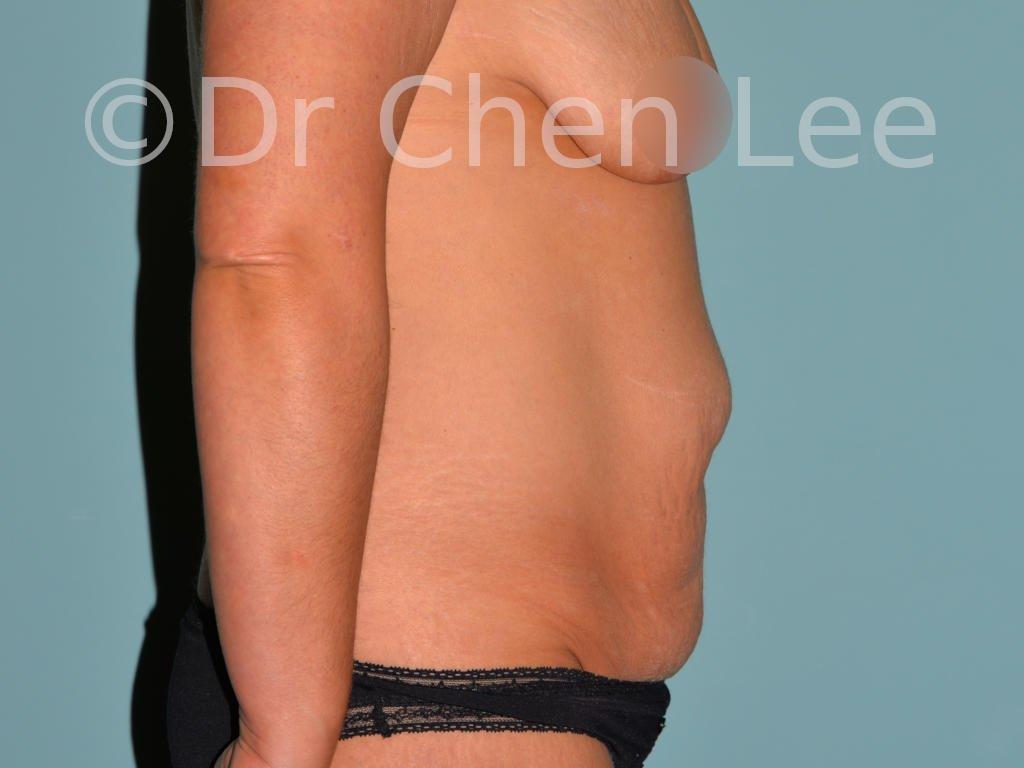 Abdominoplastie avant après redrapage abdomen photo côté droit #03
