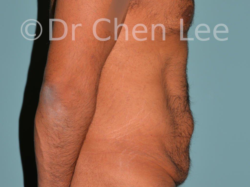 Abdominoplastie avant après redrapage abdomen photo côté droit #10