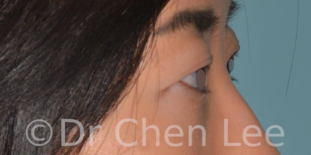 Blépharoplastie asiatique avant après chirurgie des paupières photo côté droite #03