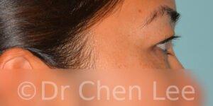 Blépharoplastie asiatique avant après chirurgie des paupières photo côté droite #04