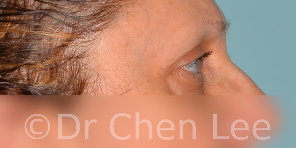 Chirurgie des paupières avant après blépharoplastie photo côté droite #08