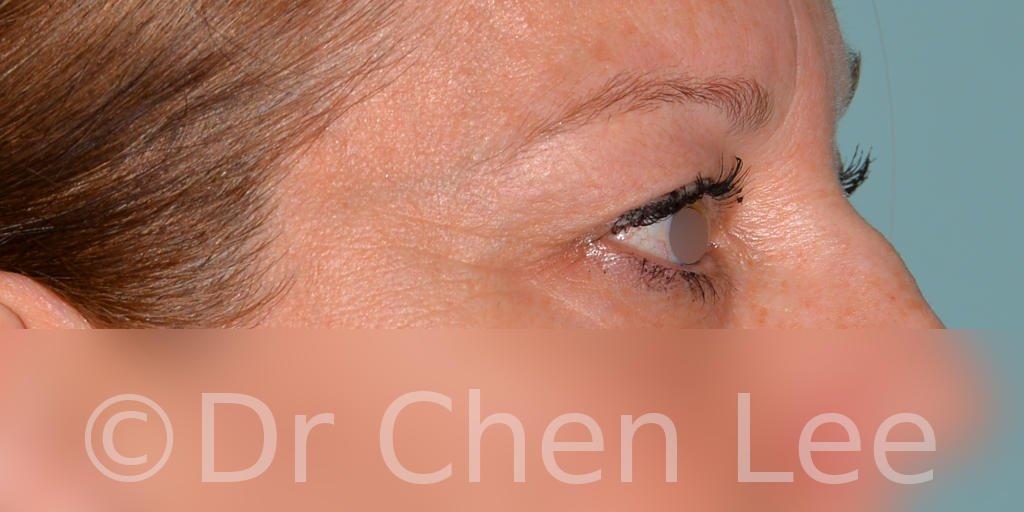 Chirurgie des paupières avant après blépharoplastie photo côté droite #04