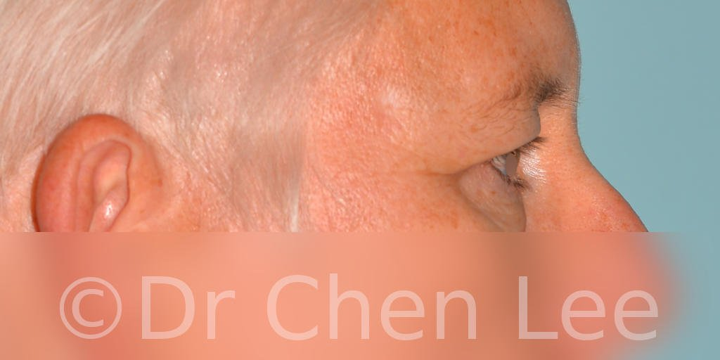 Chirurgie des paupières avant après blépharoplastie photo côté droite #03