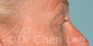 Chirurgie des paupières avant après blépharoplastie photo côté droite #09