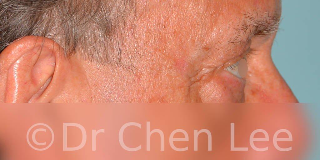 Chirurgie des paupières avant après blépharoplastie photo côté droite #12