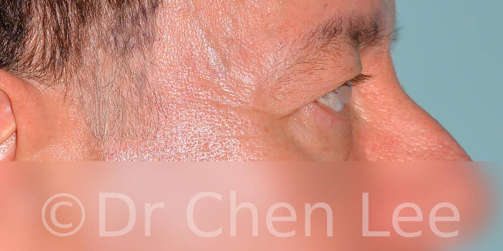 Chirurgie des paupières avant après blépharoplastie photo côté droite #06