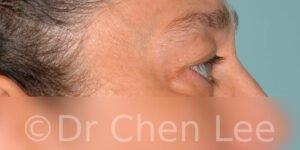 Chirurgie des paupières avant après blépharoplastie photo côté droite #11