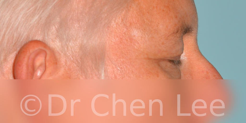 Chirurgie des paupières avant après blépharoplastie photo côté droite fermée #03