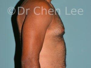 Gynécomastie avant après réduction mammaire homme photo côté droite #02