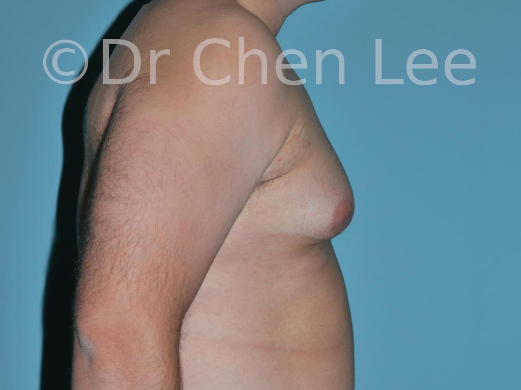 Gynécomastie avant après réduction mammaire homme photo côté droite #08