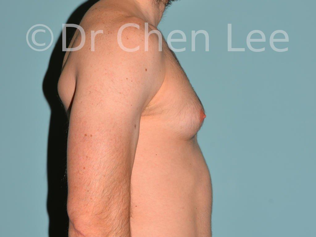 Gynécomastie avant après réduction mammaire homme photo côté droite #04