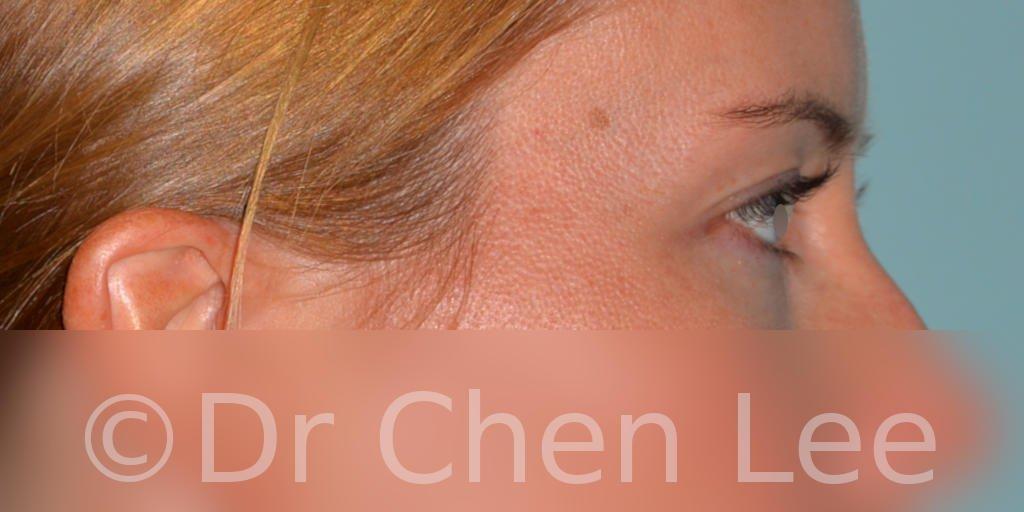 Chirurgie des paupières avant après blépharoplastie photo côté droite #02