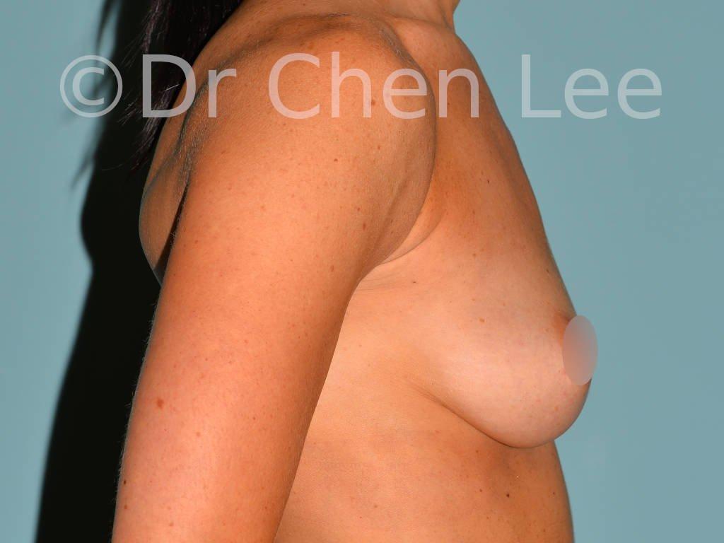 Augmentation mammaire avant après implants photo côté droit #06