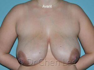 Réduction mammaire avant après photo face #04