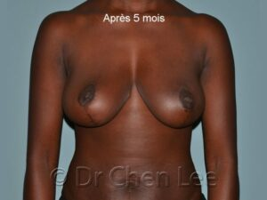 Réduction mammaire avant après photo oblique droite #02