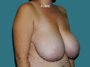 Réduction mammaire avant après photo oblique droite #01