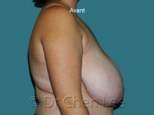 Réduction mammaire avant après photo côté droit #01