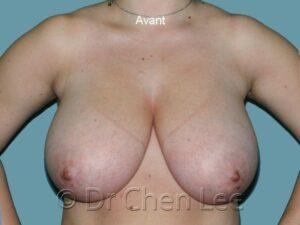Réduction mammaire avant après photo face #05