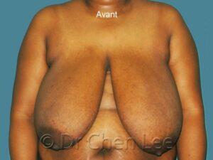 Réduction mammaire avant après photo face #06