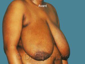 Réduction mammaire avant après photo oblique droite #06