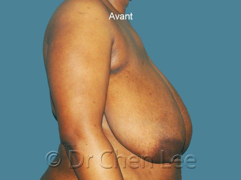 Réduction mammaire avant après photo côté droit #06