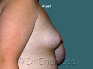 Augmentation et réduction mammaire avant après implants photo côté droit #08 & 46