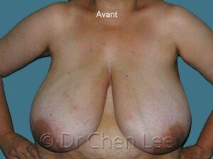 Réduction mammaire avant après photo face #07