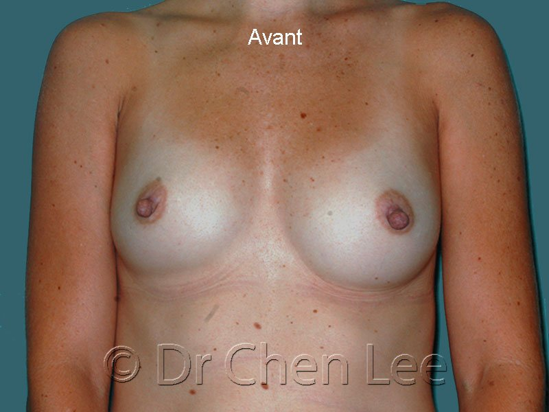 Augmentation mammaire avant après implants photo face #41