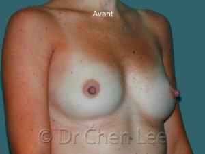 Augmentation mammaire avant après implants photo oblique droite #41