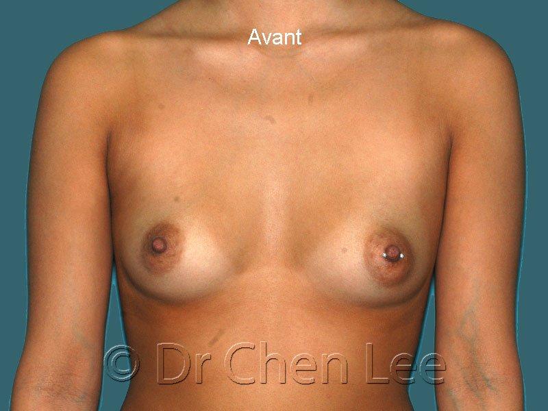 Augmentation mammaire avant après implants photo face #42