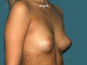 Augmentation mammaire avant après implants photo oblique droite #42