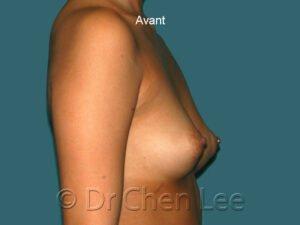 Augmentation mammaire avant après implants photo côté droit #42