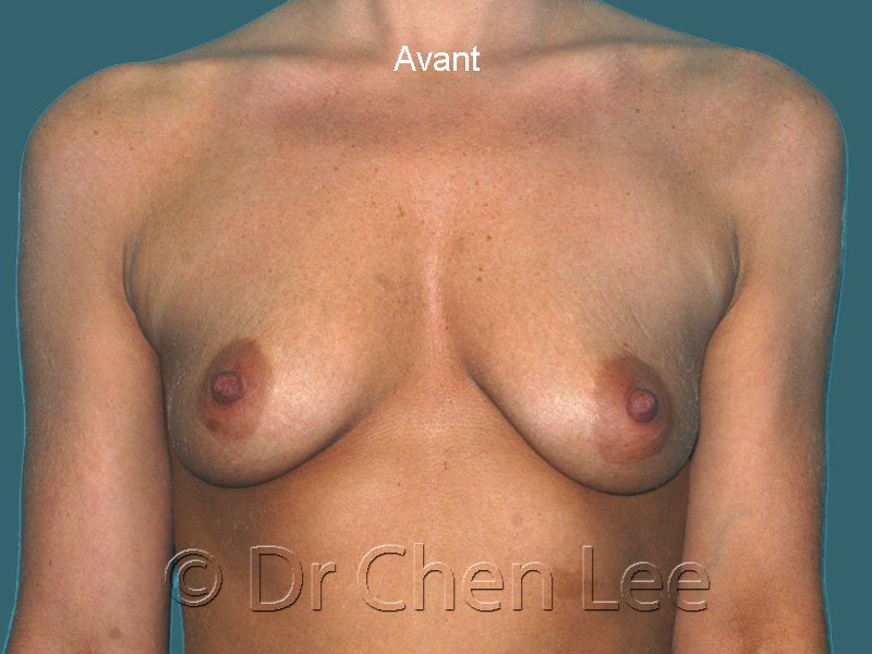 Augmentation mammaire avant après implants photo face #43