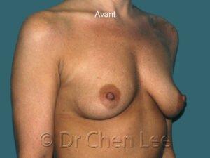 Augmentation mammaire avant après implants photo oblique droite #43