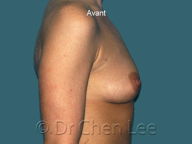 Augmentation mammaire avant après implants photo côté droit #43