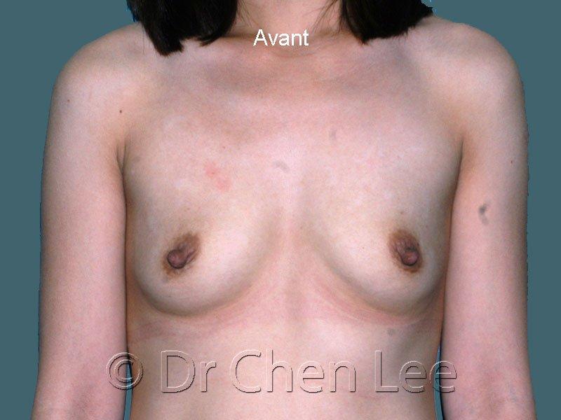 Augmentation mammaire avant après implants photo face #45
