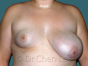 Augmentation et réduction mammaire avant après implants photo face #08 & 46