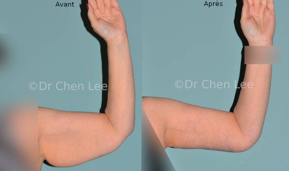 Lifting des bras avant après brachioplastie photo face flex #03