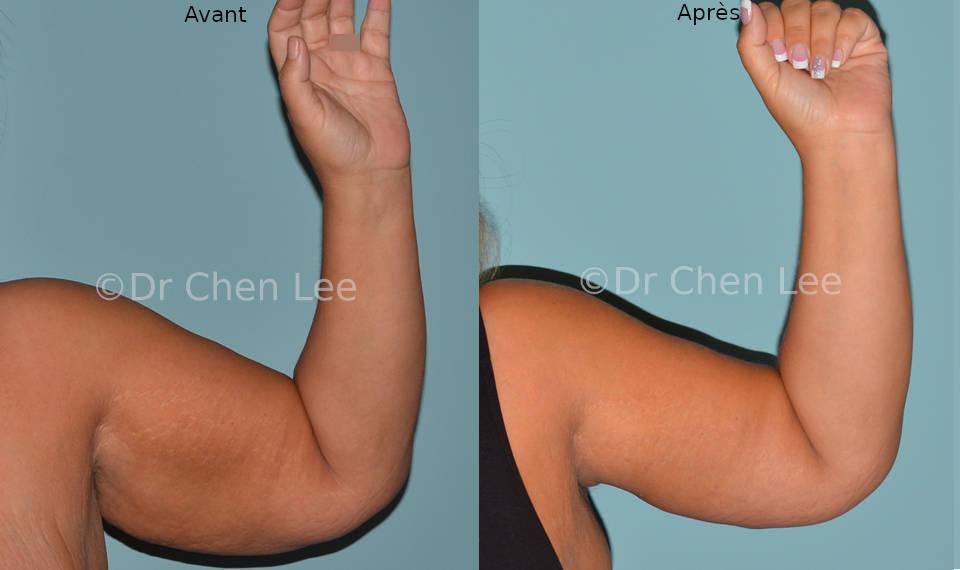 Lifting des bras avant après brachioplastie photo face flex #04