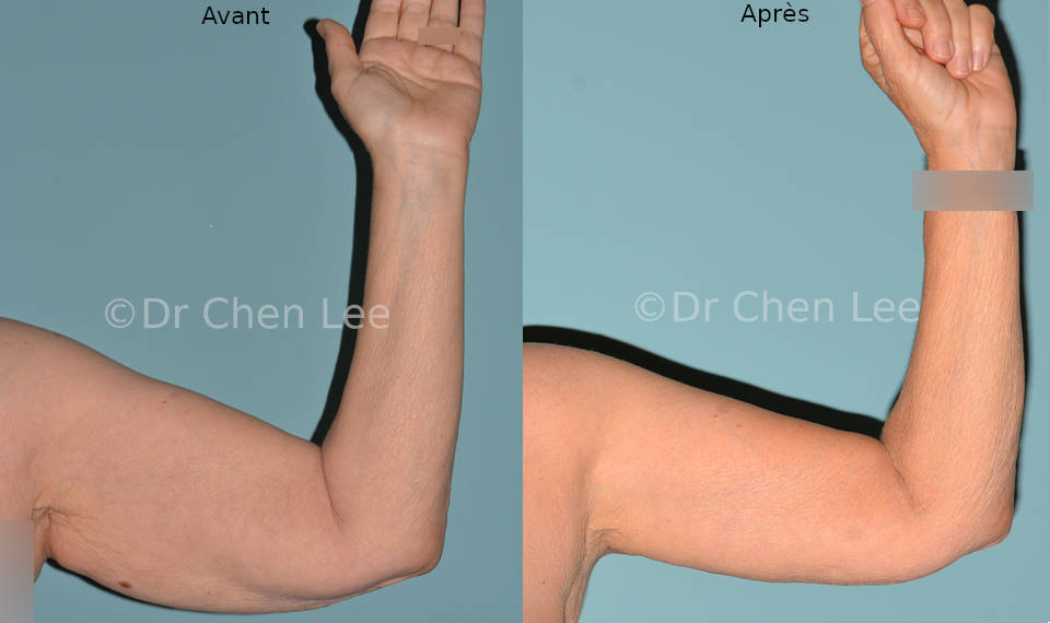 Lifting des bras avant après brachioplastie photo face flex #01