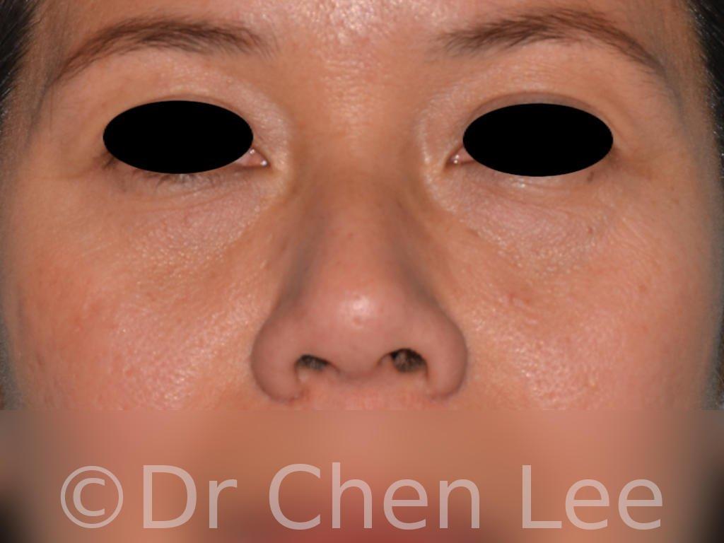 Rhinoplastie non-chirurgicale avant après injection du nez photo face #03